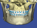 root-planning-with-cbct-scans